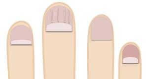 京都の手相占いで見る爪の状態